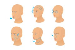 Head operation icon set, cartoon style Product Image 1