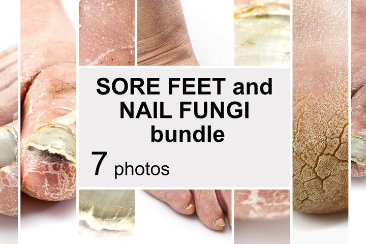 Bundle of Sore toenail, nail fungus. 7 Photos
