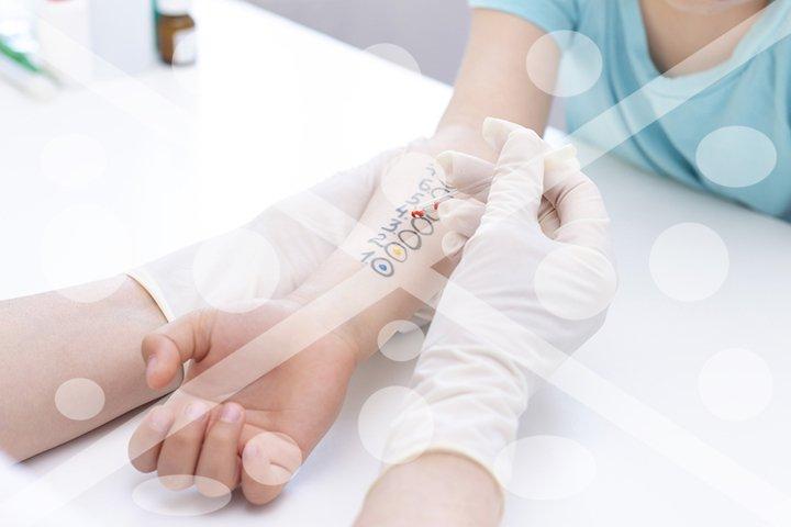 Allergen test on hand. procedure of allergen skin test in cl