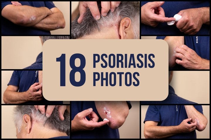 Set of 18 psoriasis photos
