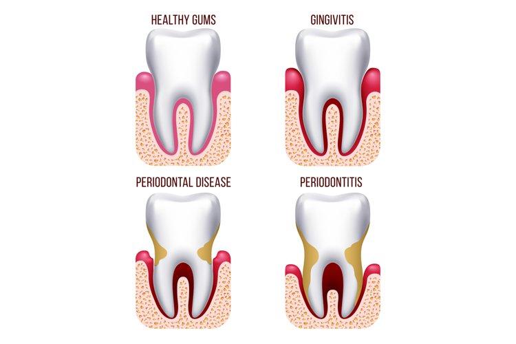 Human gum disease, gums bleeding. Tooth prevention dental, o example image 1
