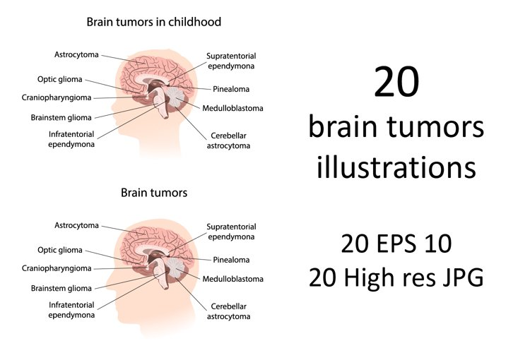 Brain cancer, tumor with explanations.