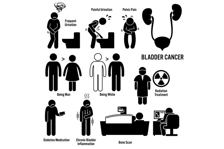 Bladder Cancer Symptoms Causes Risk Factors Diagnosis Icons example image 1