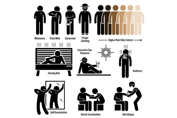 Melanoma Skin Cancer Symptoms Causes Risk Factors Diagnosis example image 1