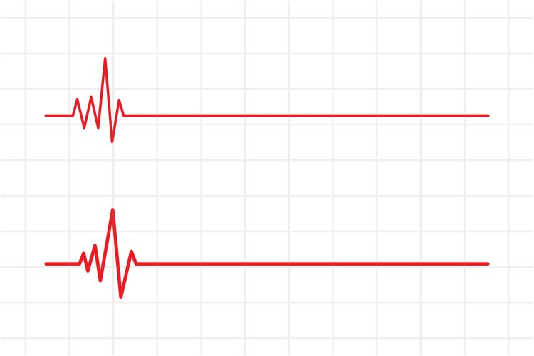 Red heartbeat line medical vector background, SVG, EPS, PNG.