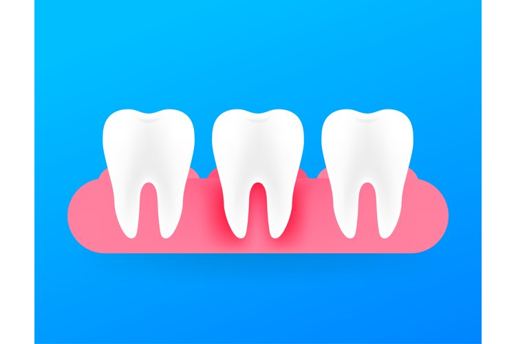 Gum disease, periodontitis. Healthy white tooth. Vector stoc example image 1