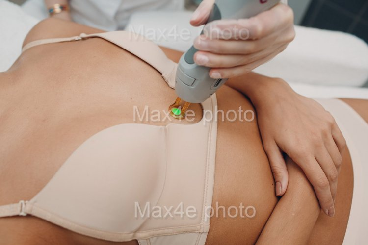 Breast Laser epilation and cosmetology. Hair removal
