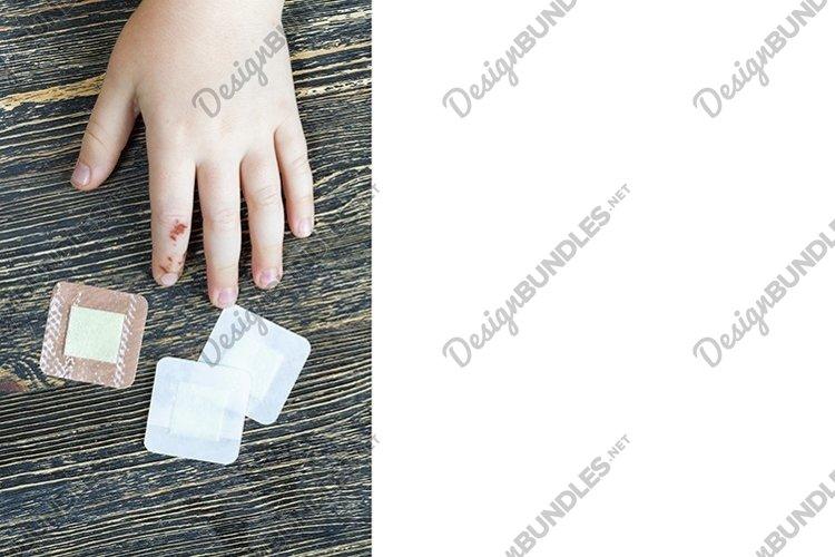 damaged finger example image 1