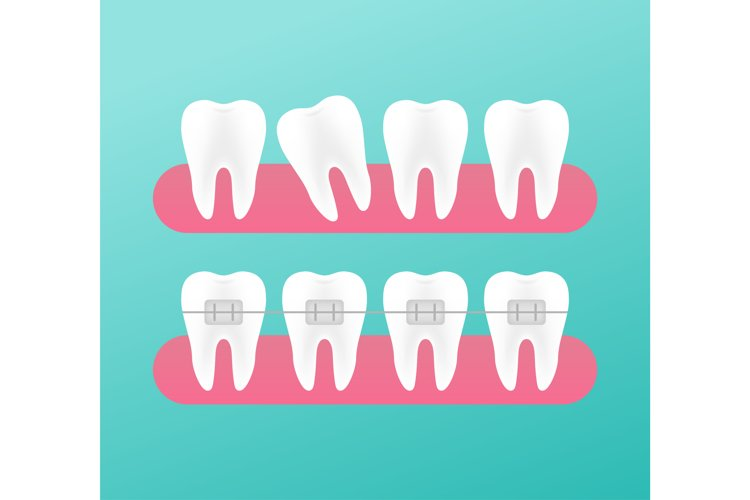 Correction of teeth with orthodontic braces. Stages of teeth example image 1