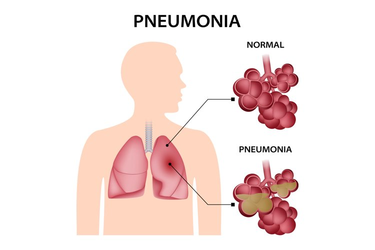 Pneumonia concept background, realistic style example image 1