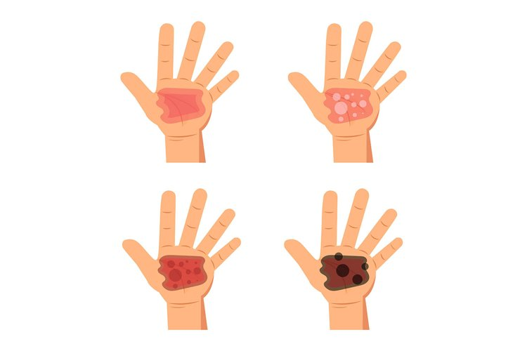 Degree burns of skin. Infographic Vector illustration. example image 1