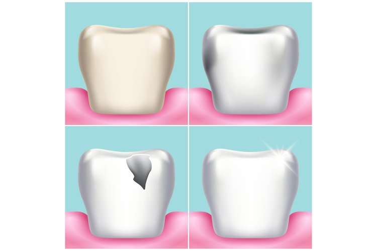 Dental problems, caries, plaque and gum disease, healthy too example image 1