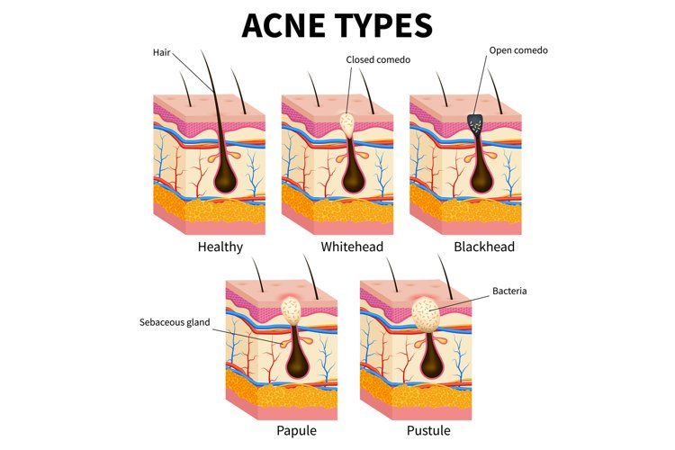 Acne types. Pimple skin diseases anatomy medical vector diag example image 1