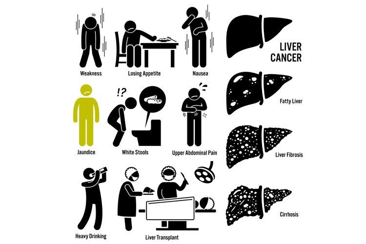 Liver Cancer Symptoms Causes Risk Factors Stick Figure Icons example image 1