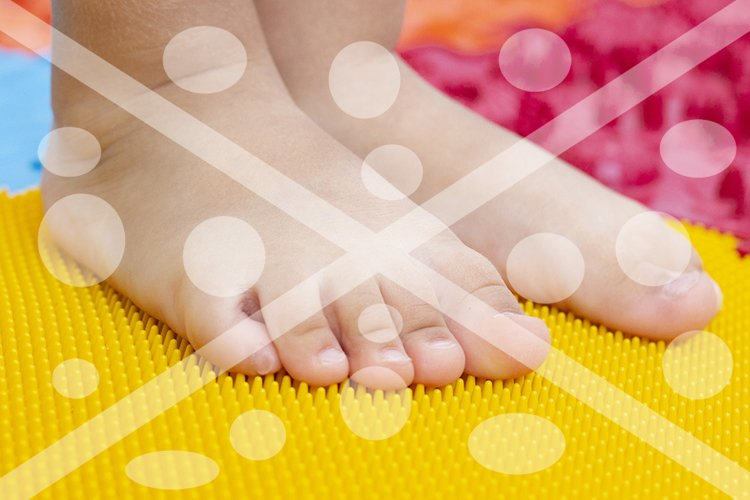 treatment and prevention of flat feet in children. A small c example image 1